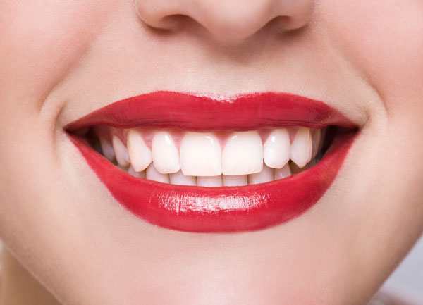 Teeth whitening after photo with white teeth