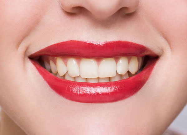 Teeth whitening before photo