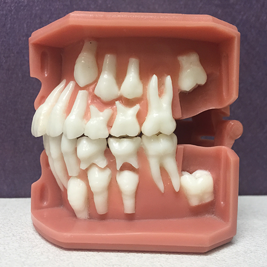baby tooth-model-543