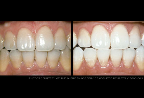 aacd_photo_of_teeth_whitening