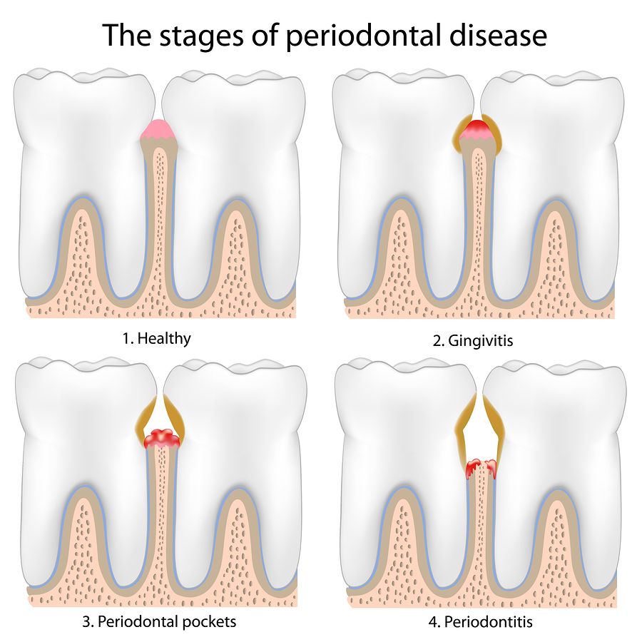 progress of periodontal disease